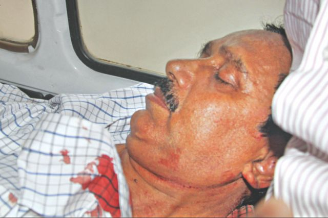 BNP city unit member secretary Abdus Salam who were wounded by police rubber bullets. Photo: Star