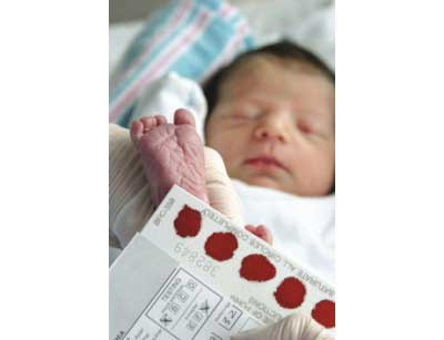 Under active thyroid in babies