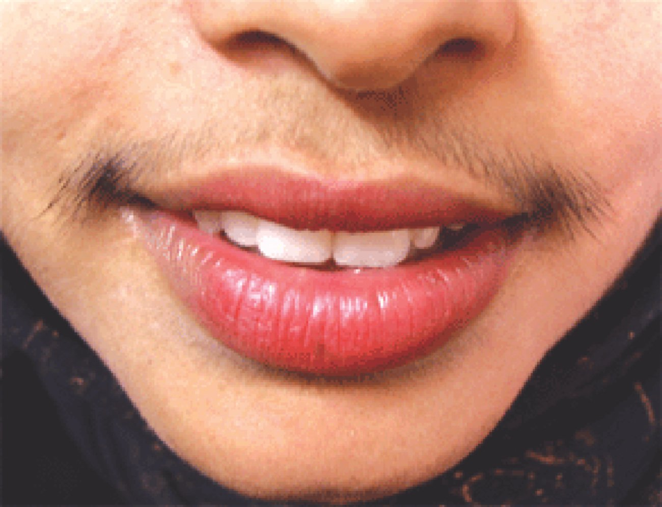 Hirsutism May Be A Sign Of Serious Medical Condition The