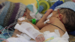 8-day-old conjoined twins successfully separated