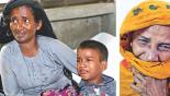 2 lakh children at great risk