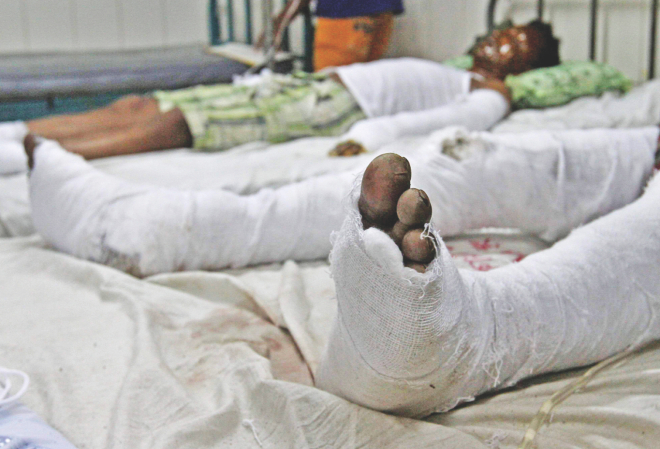 Wrapped in bandages, victims, of the explosion at the burn unit of Dhaka Medical College Hospital.  Photo: Palash Khan, Anisur Rahman