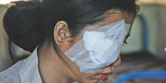 In this Star March 28, 2013 photo, Antu is seen with one of her eyes bandaged after she was hurt in a crude bomb blast in Chittagong city.