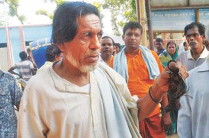 Baul Abu Bakkar shows locks of his hair that were cut off by radicals. Photo: Star