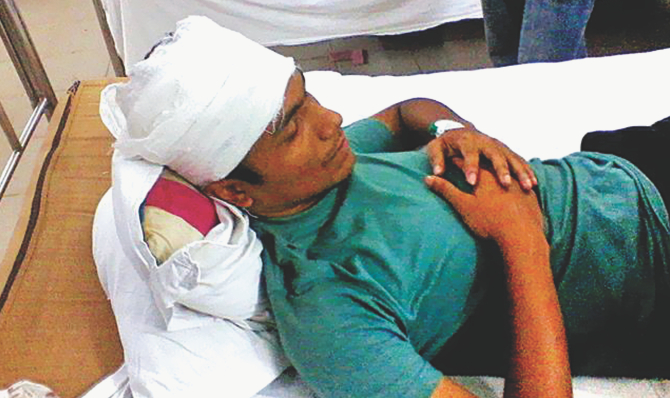 One of the injured Chhatra League activists of Jahangirnagar University's Bhasani Hall in his bed at Enam Medical College and Hospital, Savar, on Thursday. Photo: Star