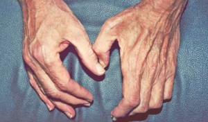 Preventing age related muscle loss — Sarcopenia
