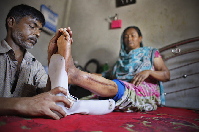 Hasu attaches an ankle-foot orthosis to the left leg of his wife Feli, one of the workers pulled out alive from the rubble of Rana Plaza last year. Photo: Star