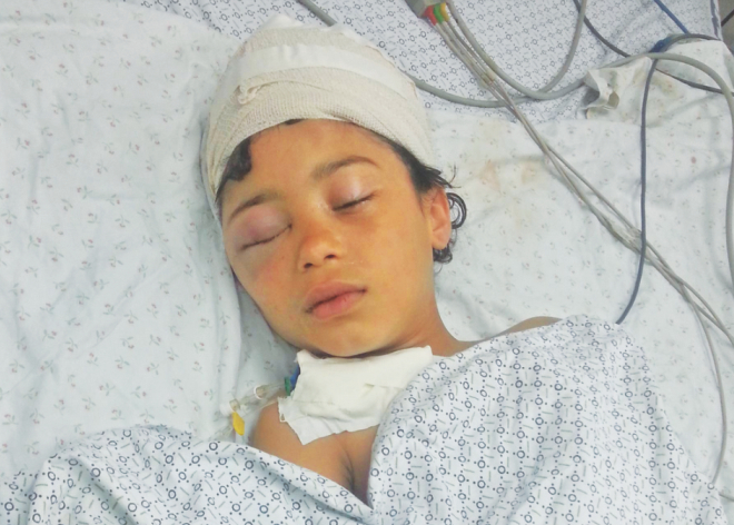 Nine-year-old Mariam, a victim of Israeli air strike on Gaza, lies in intensive care at a hospital in Palestine. Photo: Independent.co.uk