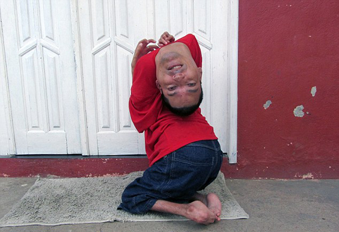 Resourceful: Claudio Vieira de Oliveira has a rare degenerative disease of the joints that has left him without the use of his limbs ... and an upside-down head. Photo taken from Barcroft media