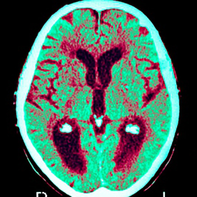 A scan shows the effect of Alzheimer's disease on the human brain. The photo is taken from the Guardian.