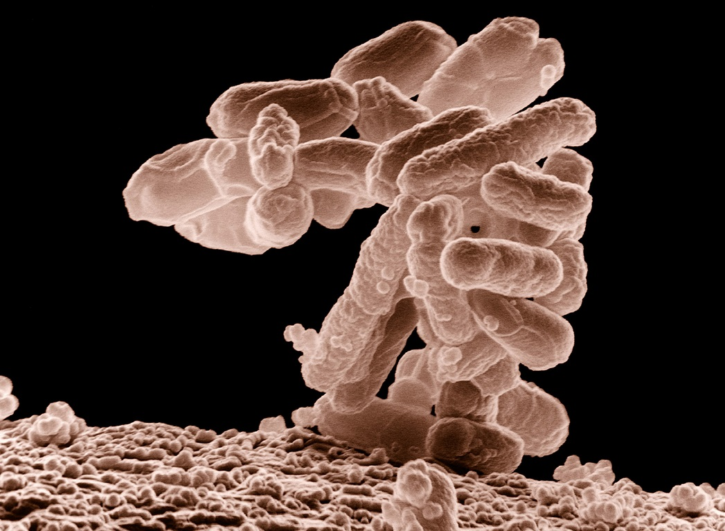 Low-temperature electron micrograph of a cluster of E. coli bacteria