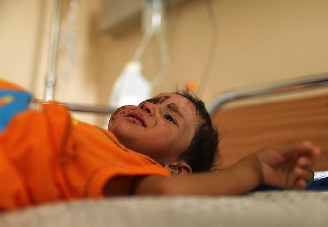 Palestinian boy Mohammed Wahdan, whom medics said was wounded in Israeli shelling, lies on a bed as he receives psychological care at Shifa hospital in Gaza City August 14, 2014. Photo: Reuters