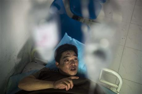 In this photo released by China's Xinhua News Agency, miner Duan Xukang receives a treatment at a hospital in Fukang City, northwest China's Xinjiang Uygur Autonomous Region, after being rescued following a gas explosion at a coal mine in western China, Sunday, July 6, 2014. This photo taken from AP website.