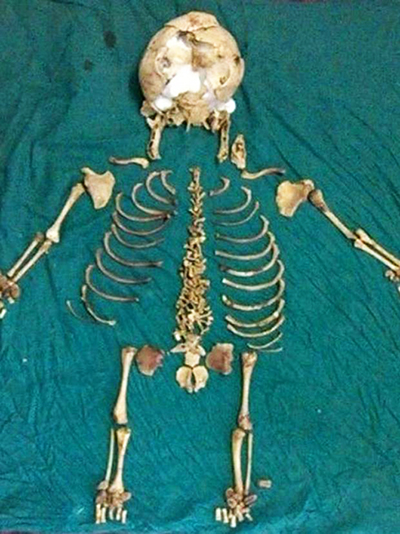 Doctors removed the skeleton believed to have come from an ectopic pregnancy in 1978. Photo: The Independent